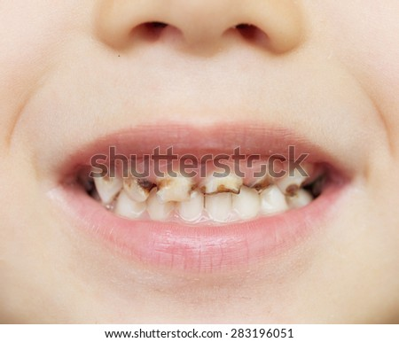 close up of unhealthy baby teeth - stock photo