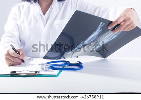 close up of woman doctor holding x-ray or roentgen image.  notes x-ray woman doctor - stock photo