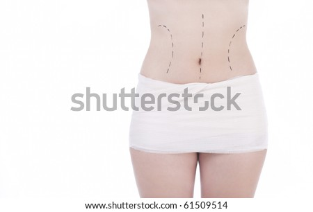 Close up of woman in bandages after buttocks plastic surgery and prepared to belly surgery - stock photo