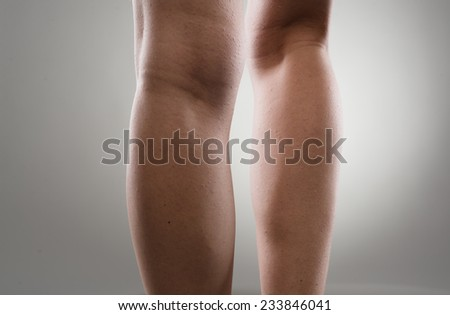 Close up of woman's leg calves over grey background. Muscular hurt and rheumatism concept.Young Caucasian female suffering from pain in legs. - stock photo