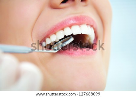 Close-up of young female having her teeth dental care - stock photo
