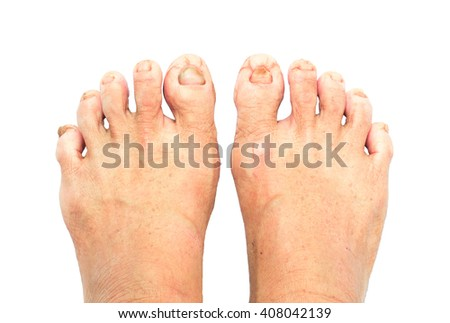 Close-up old woman's foots cracked with white background, healthy concept - stock photo