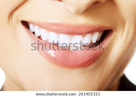 Close up on woman white teeth. - stock photo