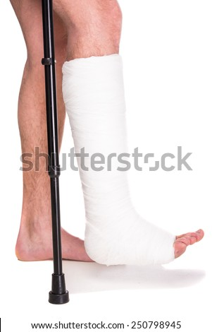 Close-up patient with broken leg in cast and bandage. - stock photo
