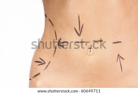 Close-up photo of a woman's abdomen marked with lines for abdominal cellulite correction cosmetic surgery - stock photo