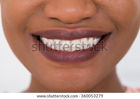 Close-up Photo Of Smiling Woman White Teeth - stock photo