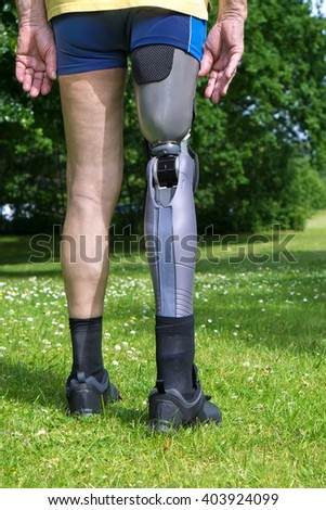 Close up rear view on gray plastic prosthetic leg of single man in yellow shirt and blue shorts standing in green grass with white clover flowers - stock photo