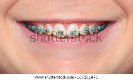 Close up smile of an teenage girl wearing orthodontic braces. - stock photo