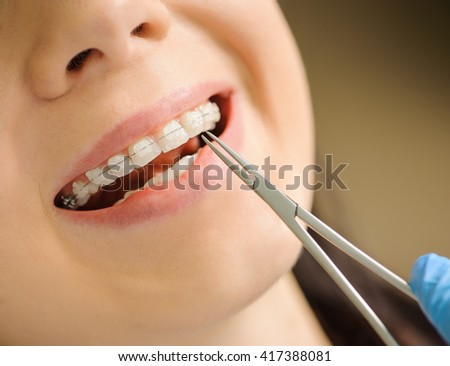 Close-up smiling female with ceramic braces on teeth at the dental office. Dentist holding dental tool - mosquito. Orthodontic Treatment. - stock photo