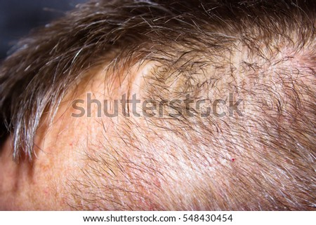 Closeup circular hair loss back head stock photo 548430454 close up to circular hair loss at the back of the head skin disease urmus Choice Image