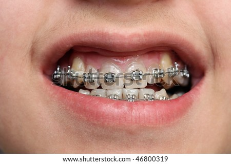 close-up view on children teeth with braces - stock photo
