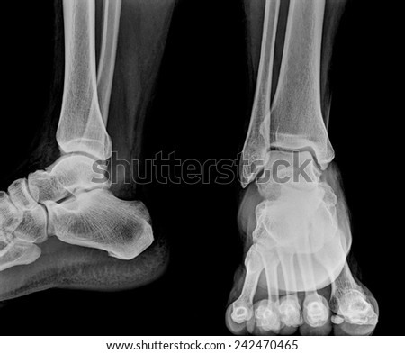 Close up  x-ray of ankle - stock photo