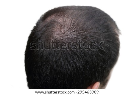 closeup background of bald head - stock photo