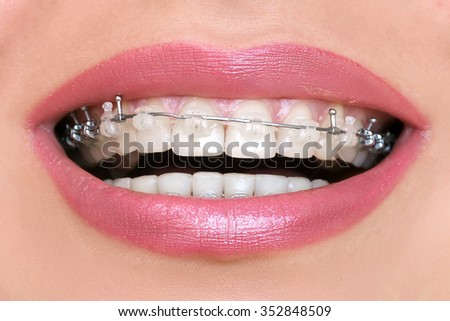 Closeup Braces on Teeth. Woman Smile with Orthodontic Brackets.