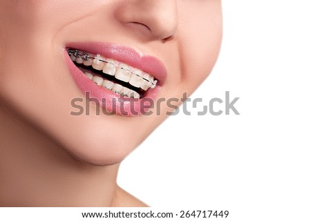 Closeup Ceramic and Metal Braces on Teeth. Beautiful Female Smile with Self-ligating Braces. Orthodontic Treatment. - stock photo