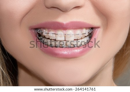Closeup Ceramic and Metal Braces on Teeth. Broad Smile with Self-ligating Brackets. Orthodontic Treatment. Woman Smiling Showing Dental Braces. - stock photo