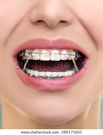 Closeup Ceramic and Metal Braces on Teeth with Elastic Rubber Bands. Open Female Mouth with Self-ligating Braces. Orthodontic Treatment. - stock photo