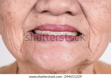 closeup elderly woman smiling with false teeth - stock photo