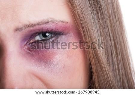 Closeup of a black eye of a beaten woman as a domestic violence victim - stock photo