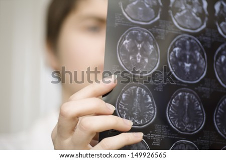 Closeup of a blurred female doctor holding CAT scan - stock photo