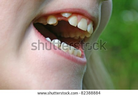 Closeup of a child's teeth coming in crookedly - stock photo
