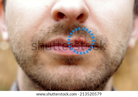 Closeup of a common cold sore virus herpes. Marked cold sores on the lips of a man with a beard - stock photo