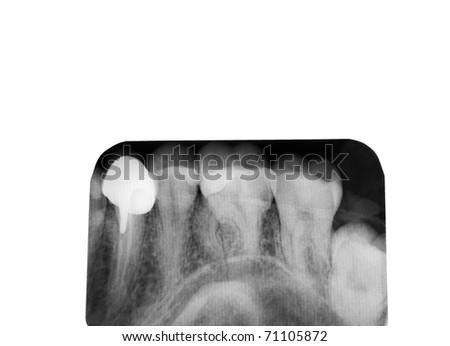 Closeup of a dental x-ray - stock photo