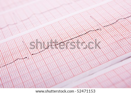 closeup of a heart rate monitor printout - stock photo