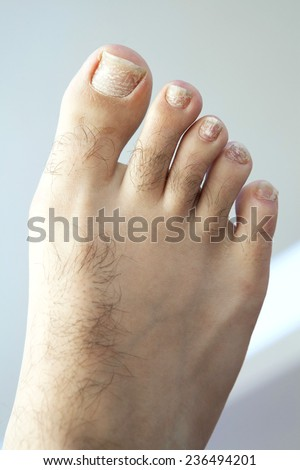 Closeup of a human foot and toes with cracked and peeling toe nails. - stock photo