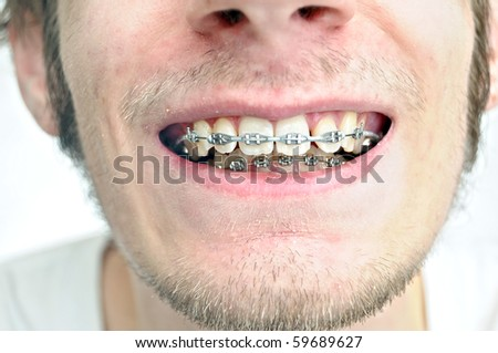 Closeup of a mans teeth with braces on - stock photo
