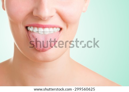 Closeup of a mouth with braces on teeth and the tongue out, isolated in white - stock photo