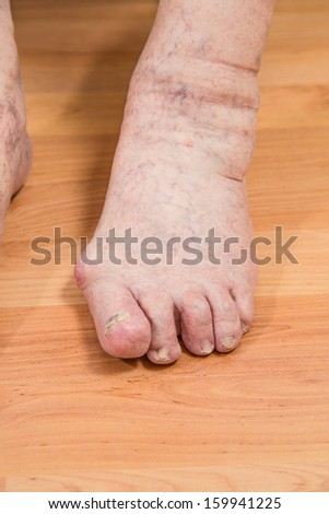 closeup of a senior person's foot with arthritis, damaged nails and athlete's foot - stock photo