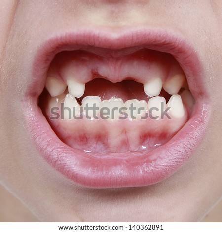 Closeup of child's mouth with missing teeth