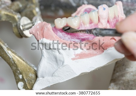 Closeup of dental technician is working with wax in dental mold in lab. - stock photo