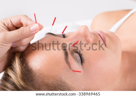 Closeup of hand performing acupuncture therapy on head at salon - stock photo