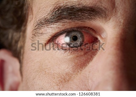 Closeup of irritated red bloodshot eye - stock photo