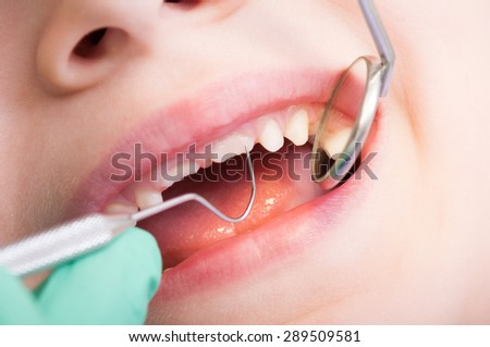 Closeup of kid mouth with mirror at dentist. Boy teeth periodic dental checkup - stock photo