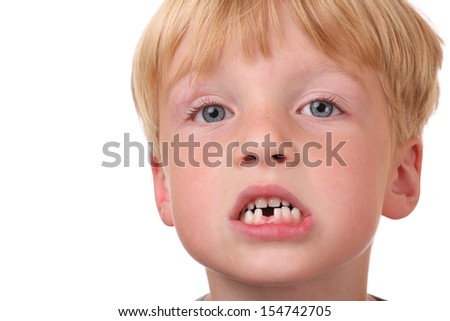 Closeup of little boy with missing teeth - stock photo