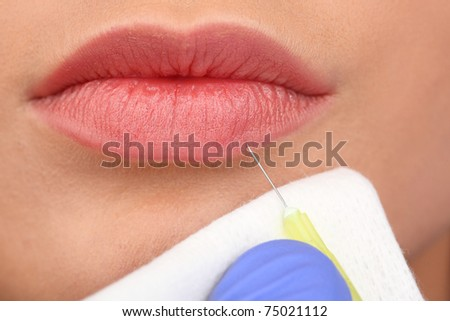 Closeup of lovely girl mouth getting injection on her lips - stock photo