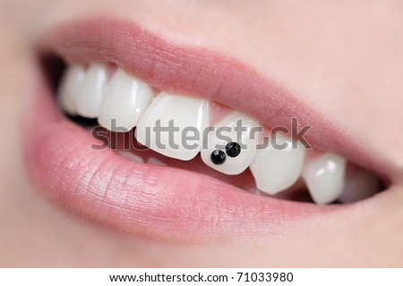 Closeup of open mouth with dental jewelry tooth. Intentional very shallow depth of field. - stock photo