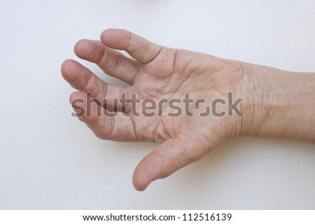 Closeup of senior hand with strong arthritis