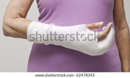 Closeup of senior woman's arm in a bandage and cast. - stock photo