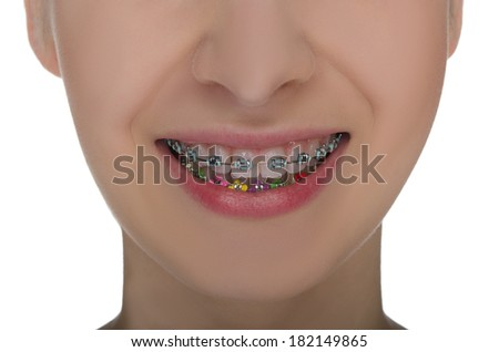 Closeup of smiling mouth with braces on teeth isolated on white - stock photo