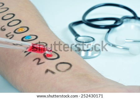 closeup of the arm of a young man who is having a skin allergy test - stock photo
