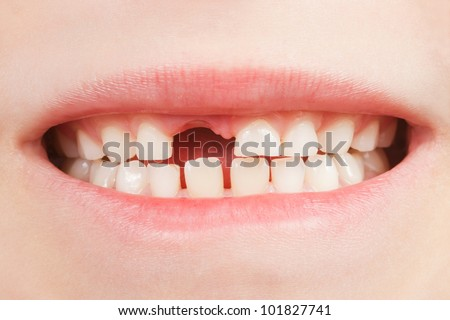 Closeup of the opened mouth of a child with a tooth space - stock photo