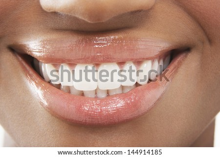 Closeup of woman smiling with perfect white teeth - stock photo
