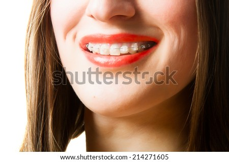 closeup of young woman' mouth with invisible braces