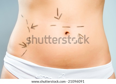 Closeup photo of a Caucasian lady's abdomen  marked with lines for abdominal cellulite correction cosmetic surgery - stock photo