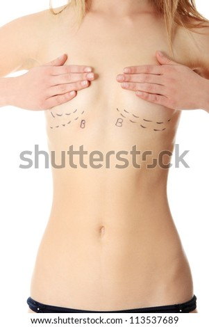 Closeup photo of a Caucasian woman's breasts marked with lines for breast augmentation