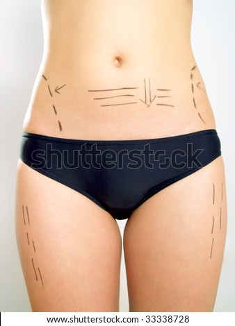 Closeup photo of an attractive Caucasian woman's abdomen and legs marked with lines for abdominal cellulite correction cosmetic surgery. - stock photo